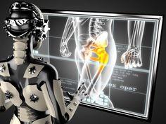 Эндопротезирование сустава - это операция по замене компонентов сустава имплантантами, которые имеют анатомическую форму здорового сустава и позволяют выполнять весь объём движений