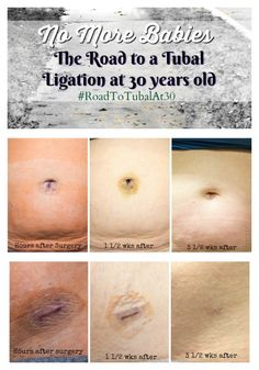 65 Best Tubal Ligation Reversal Very Possible!!! images in