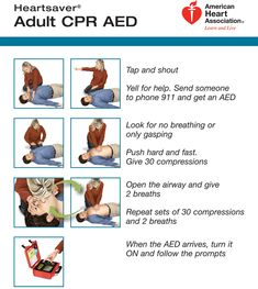 Wed, Jul PM: Discussion of Skill Workshop First Aid Wilderness - Basic CPR for One Man Rescuer.About 92 percent of sudden cardiac arrest victims die before reaching the First Aid Cpr, Safety And First Aid, Cardiac Nursing, Nursing Assessment, Cpr Funny, Cpr For Dogs, Cpr Instructions, Basic Life Support, Cpr Training