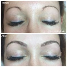 Eyebrow Doctor | Eyebrow Tattoo - Brows by Piret - Services & Prices