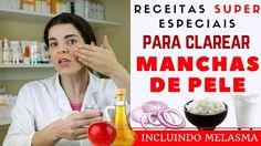 Acabe com as MANCHAS NA PELE, inclusive MELASMA - Receita Caseira