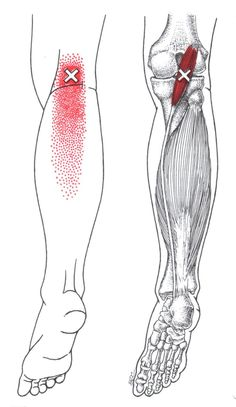 Plantaris trigger point diagram, pain patterns and related medical symptoms. The myofascial pain pattern has pain locations that are displayed in red and associated trigger points shown as Xs. Medical Symptoms, Referred Pain, Dry Needling, Psoas Release, Knee Osteoarthritis, Trigger Point Therapy, Reflexology Massage, Qi Gong, Massage Techniques