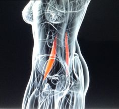 Difficulty in diagnosing Psoas Infection: http://homepage.vghtpe.gov.tw/~jcma/67/3/156.pdf