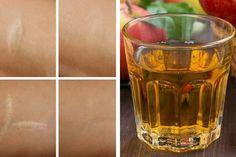 Antioxidatives Gesichtswasser für Falten, Narben und Sonnenbrand