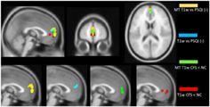 Medial prefrontal cortex deficits correlate with unrefreshing sleep in patients with chronic fatigue syndrome