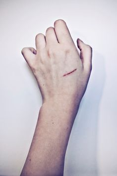 this is so weird.... cause i have a cut on my hand just like that... on the same hand.. twin?