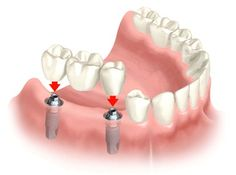 Εμφυτεύματα από την Implants For All. Μάθετε περισσότερα στο http://implantsforall.gr/el/