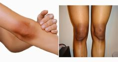 Having thick skin, especially on the knees and elbows is such a good thing. Rough skin on these parts is a common problem for most women. But you should not be worrying- we bring you …