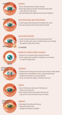 How to Read People Through Their Eye Movements and Uncover Hidden Emotions - Miller is Home Iridology Chart, Human Body Organs, Eye Anatomy, Eye Facts, Nursing Mnemonics, How To Read People, Mudras, Medical Anatomy, Healthy Eyes