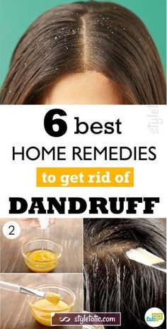 Are you ashamed of wearing a black dress? Try natural home remedies for dandruff. Using these remedies on a regular basis, you will get an effective result within 15 days. Heading: Apply natural home remedies for dandruff and shine with your hair. Home Remedies For Dandruff, Oils For Dandruff, Hair Dandruff, Getting Rid Of Dandruff, Home Remedies For Hair, Health Remedies, Herbal Remedies, Natural Remedies For Dandruff, Hair