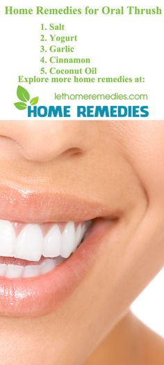 Here are top natural home remedies for oral thrush. This article will help you identify causes, symptoms and some useful oral thrush treatments. Oral Thrush Remedies, Oral Thrush Treatment, Health Remedies, Dental Health, Oral Health, Health Tips, Health And Wellness, Gut Health, Health Care