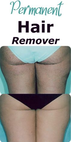 Remove Unwanted Hair become Fast, Easy, and safe, The Number 1 Removal Hair that all modeling stars and famous actors use to look shiny and gorgeous. Permanent Facial Hair Removal, Chin Hair Removal, Upper Lip Hair Removal, Underarm Hair Removal, Electrolysis Hair Removal, Remove Unwanted Facial Hair, Hair Removal For Men, Unwanted Hair, Best Hair Removal Products