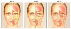 facial fat loss progression