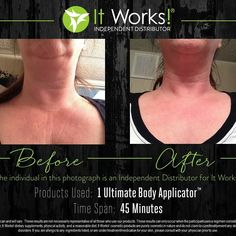 Personal Before And After  Wrapped from Chin down to breast! Www.anewyoubyjulie.com