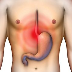 Why does heartburn occur? What could be the cause of the sometimes unbearable pain of heartburn? As mentioned earlier, heartburn actually has something to do with your digestive system. Home Remedies For Acidity, Natural Home Remedies, Herbal Remedies, Health Remedies, Natural Medicine, Herbal Medicine, Holistic Medicine, Health And Nutrition, Health And Wellness