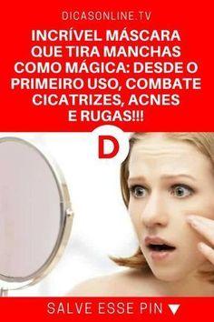 mascara para acne | INCRÍVEL MÁSCARA QUE TIRA MANCHAS COMO MÁGICA: DESDE O PRIMEIRO USO, COMBATE CICATRIZES, ACNES E RUGAS!