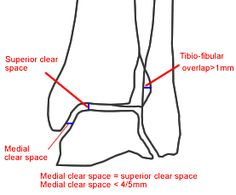 medial clear space ankle - Google Search
