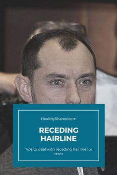Receding hairline men starts from the sides of the head. You may notice that you start to loose parts of your hair in both of your head sides. Men's Health Fitness, Men Health, To Loose, Hairline, Healthy Tips, Weight Loss Tips, Healthy Lifestyle, Nutrition, Men's Fitness