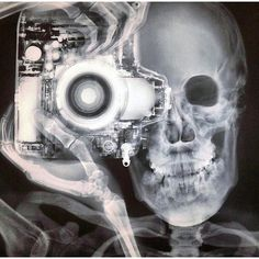 X-Ray composite of a photographer. By Nick Veasey #WowScience...