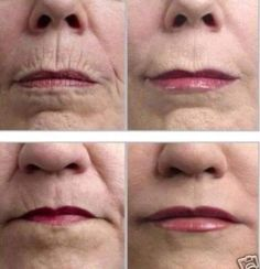 Instantly Ageless on upper lips...