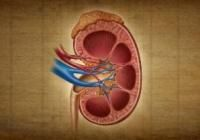 What Foods Can Cause Kidney Stones?