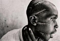 1994'te Ruanda'da bu adam Tutsi isyancılarıyla konuştuğu gerekçesiyle askerler tarafından bu hale getirildi.