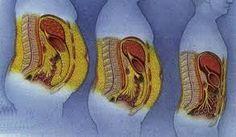 Les dangers de la graisse abdominale chez la femme: comment la combattre ?