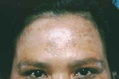 Melasma is a common skin problem. It causes brown to gray-brown patches on the face. Women are far more likely than men to get melasma. Brown Patches On Face, Spots On Forehead, Chemical Peel, Upper Lip, Skin Problems, Face Skin, Clear Skin, Good Skin, Skin Care Tips