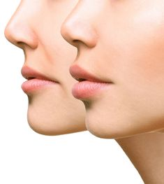 Botox Quotes, Reduce Double Chin, Nasolabial Folds, Face Lines, Face Yoga, Lip Injections, Clear Face, Face Massage, Dermal Fillers