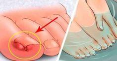 Nedgroede tånegle er smertefulde. Der er meget effektive hjemmelavede midler til at forhindre infektion, men kan også lindre en, der allerede er opstået.
