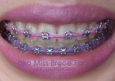 Rainbow Braces to Beautify Your Teeth Pink Braces, Fake Braces, Braces Tips, Dental Braces, Teeth Braces, Dental Care, Braces Bands, Black Braces, Power Chain Braces
