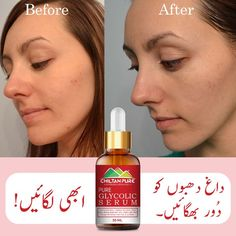 Gentle Exfoliator Improve Skin Tone Treat Acne Sheds Dead Skin Cells Reduce Acne Scarring & Inflammation Safe for All Skin Types #ChiltanPure #organic #purity #treatacne #serum Glycolic Acid, How To Treat Acne, Serum, Personal Care, Skin Care, Pure Products, Dead Skin, Sheds
