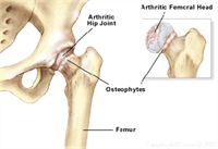 Osteoarthritis Hip Natural Cures