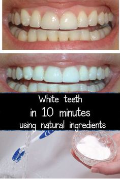 White teeth in 10 minutes using natural ingredients is creative inspiration for us. Get more photo about diy home decor related with by looking at photos gallery at the bottom of this page. We are want to say thanks if you like to share this post to another people via …