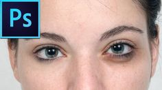 Remove Eye Shadows & Black Spots in Photoshop