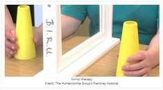 Mirror Therapy Assists Upper Limb Motor Recovery in Patient with Acquired Brain Injury  - pinned by @PediaStaff – Please Visit ht.ly/63sNtfor all our pediatric therapy pins - mirror therapy is also used for rehabiliating UE in people with hemiparesis