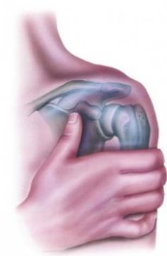 Physical Therapy vs Muscle Activation Therapy following arthroscopic shoulder surgery?