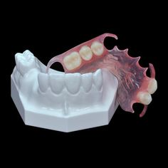 Affordable Dentures, Snap On Smile, Kid Rock Picture, Dental Technician, Smile Teeth, Dental Procedures, Stained Teeth, Perfect Smile, Dental Assistant