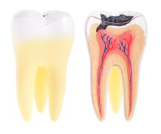 What Causes a Dead Tooth to Die? Rotten teeth are the result of the demineralization of tooth enamel by the acid-producing bacteria that normally grow the human mouth. The acid can eat through the enamel and dentin into the pulp of the tooth producing first a toothache and then a dead tooth.