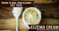 DIY Eczema Cream {but Nourishing For Your Skin Even If You Don't Have Eczema!}Homemade Eczema Cream You will need: – 1/2 cup shea butter – 20 drops geranium essential oil – 30 drops cedarwood essential oil – 20 drops lavender essential oil  Simply mix all the ingredients together in a small jar.How does it work?   Shea butter: A tried and true moisturizer that heals the skin wonderfully. It is rich in Vitamin A and mimics the natural moisturize produced by our skin.Geranium essential oil…