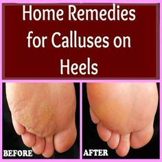 Home Remedies for Calluses on Heels | Pin Remedies