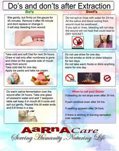 What to do and not to do after tooth removal , tooth extraction or tooth surgeries or Dental surgeries. What to do and not to do after tooth removal , tooth extraction or tooth surgeries or Dental surgeries. Wisdom Tooth Extraction Recovery, Tooth Extraction Aftercare, Tooth Extraction Healing, Wisdom Tooth Recovery, Dental Extraction, Recovery Food, Food After Wisdom Teeth, Wisdom Teeth Pulled, Wisdom Teeth Funny