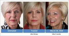 "Before & After Nuskin Treatment 3month, 6 months.....all natural with ""AgeLOC"" products!! Results in 10 minutes using our Patented Products! We are going to the SOURCE of aging......our GENES! www.ageloc.com"