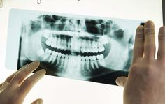 9 Things You Can Do to Get a Perfect Smile  http://www.menshealth.com/style/smile-fixes?utm_source=facebook.com