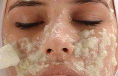Cremas caseras para eliminar las manchas de la cara
