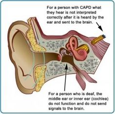 Information and Support for Central Auditory Processing Disorder (CAPD)  ...interesting...