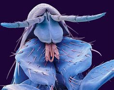 This is an actual microscopic picture of a flea.  Ewwww.