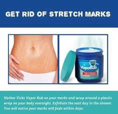 Vicks for stretch marks ?