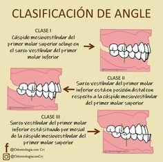 Dental Hygiene School, Dental Life, Dental Art, Dental Training, Braces Tips, Dental Technician, Oral Health, Study Tips, Medicine