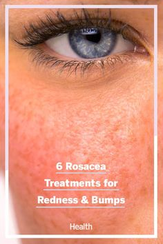 While there's no cure for rosacea, prompt attention and therapy can prevent some of its long-term complications. Here, some options to consider when searching for the best rosacea treatment for you. Skin Care Treatments, Top Skin Care Products, Eyes Problems, Anti Aging Skin Care, Beauty Hacks, Beauty Tips, Nocturne, Health, Make Up